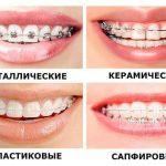 Керамические брекеты – лечение с эстетическим эффектом